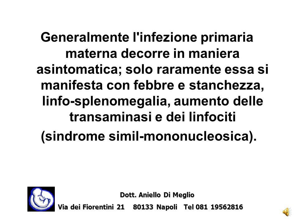 (sindrome simil-mononucleosica).