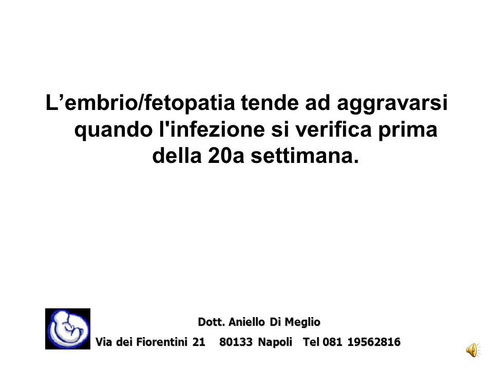 L'embrio/fetopatia tende ad aggravarsi quando l infezione si verifica prima della 20a settimana.