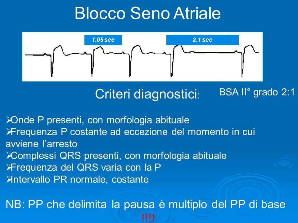 Blocco Seno Atriale 1.05 sec. 2.1 sec. Criteri diagnostici: Onde P presenti, con morfologia abituale.