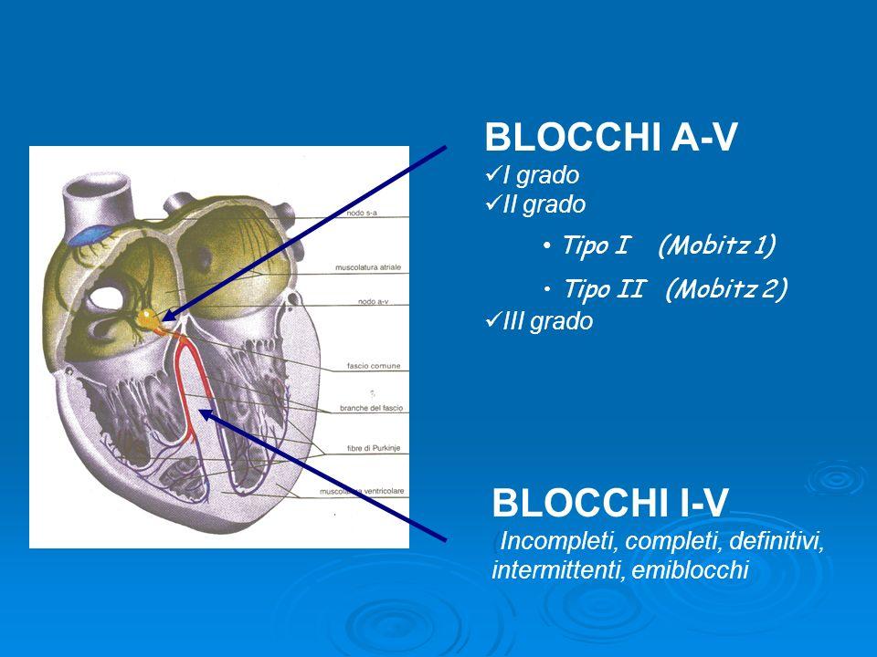 BLOCCHI A-V BLOCCHI I-V I grado II grado III grado Tipo I (Mobitz 1)