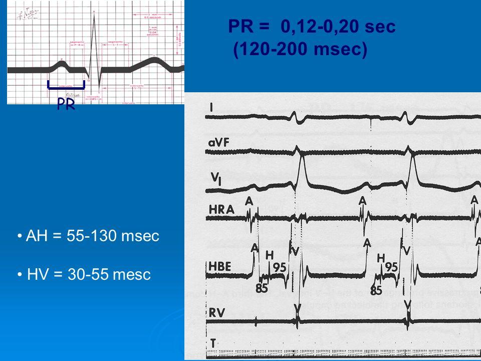 PR = 0,12-0,20 sec (120-200 msec) PR AH = 55-130 msec HV = 30-55 mesc