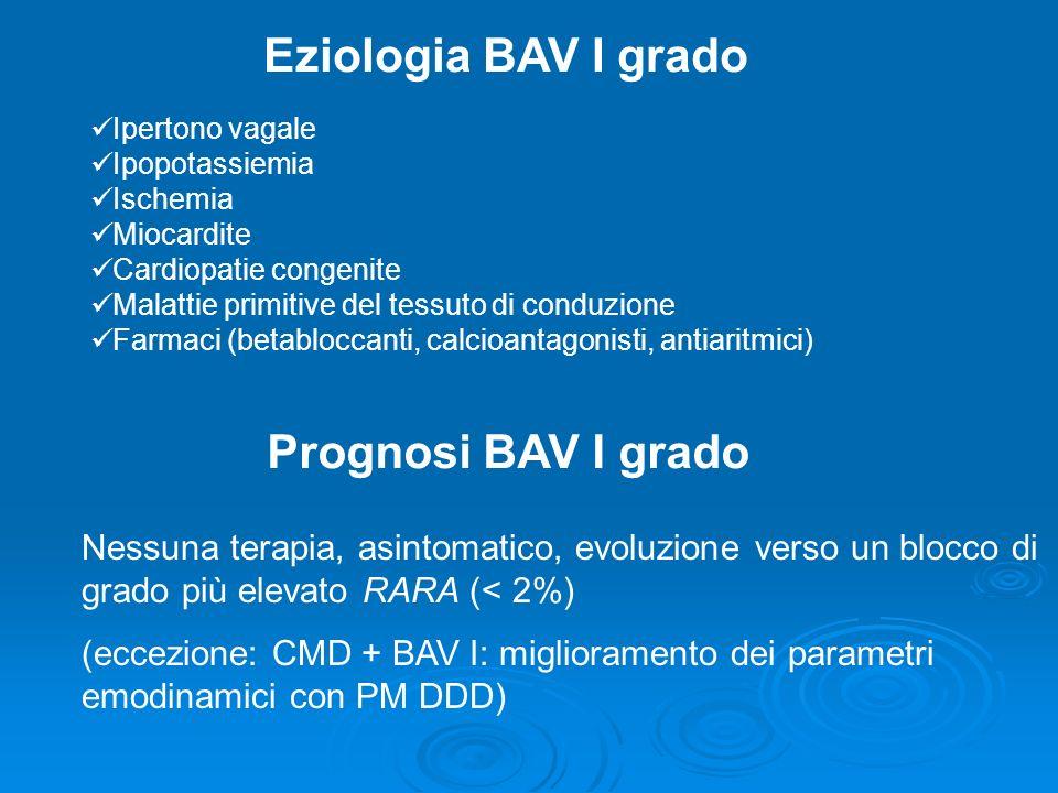 Eziologia BAV I grado Prognosi BAV I grado