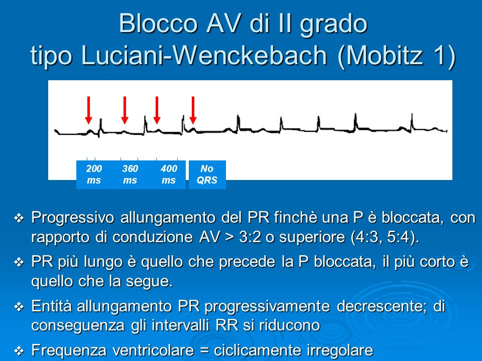 Blocco AV di II grado tipo Luciani-Wenckebach (Mobitz 1)