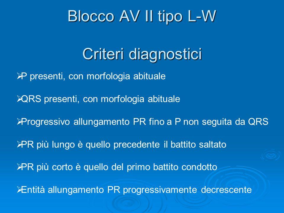 Blocco AV II tipo L-W Criteri diagnostici
