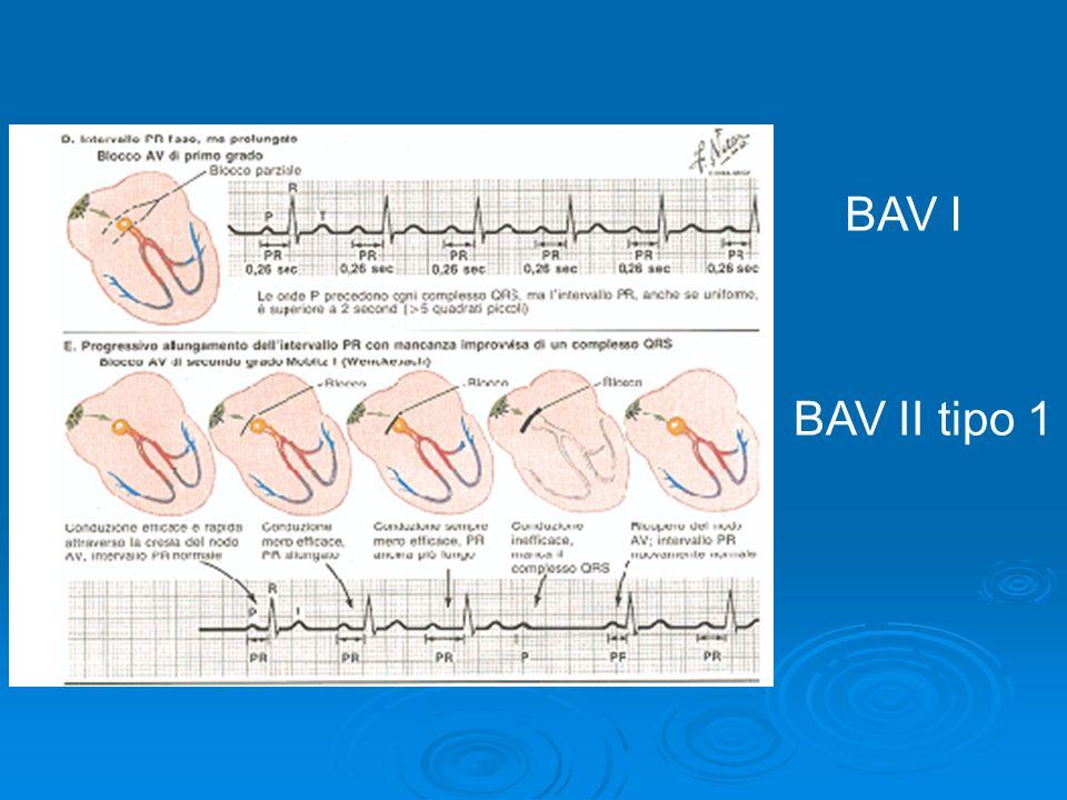 BAV I BAV II tipo 1