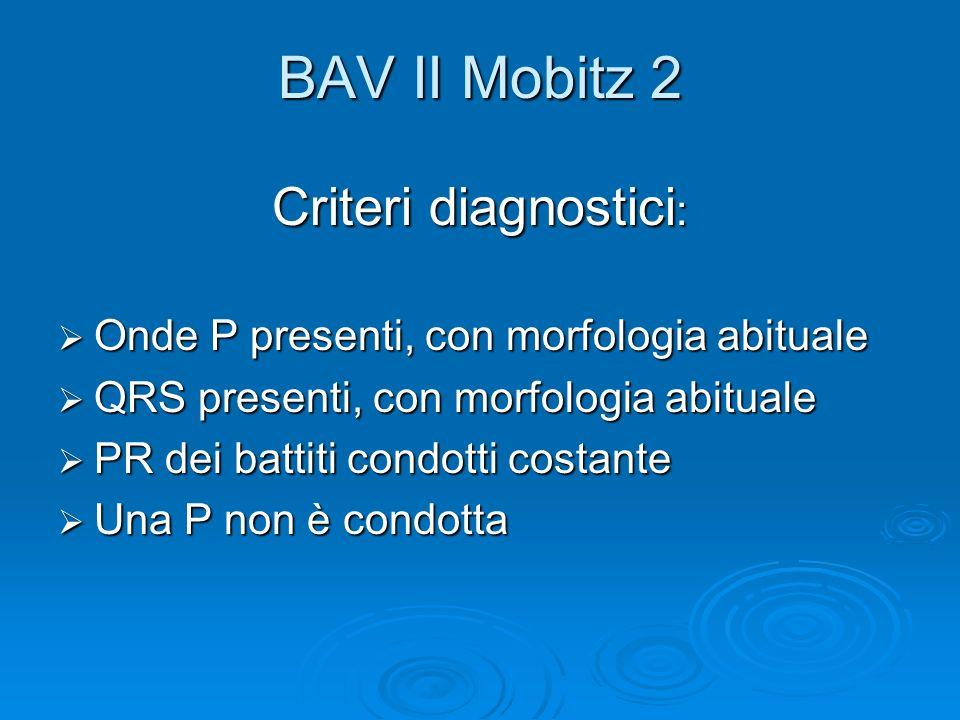 BAV II Mobitz 2 Criteri diagnostici: