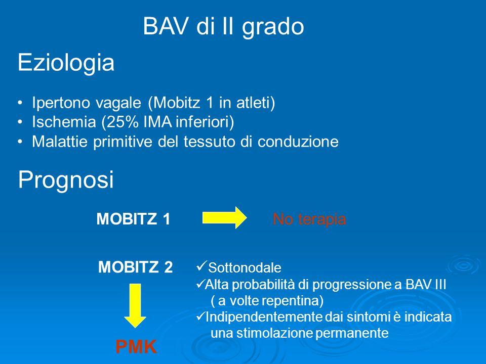 BAV di II grado Eziologia Prognosi PMK