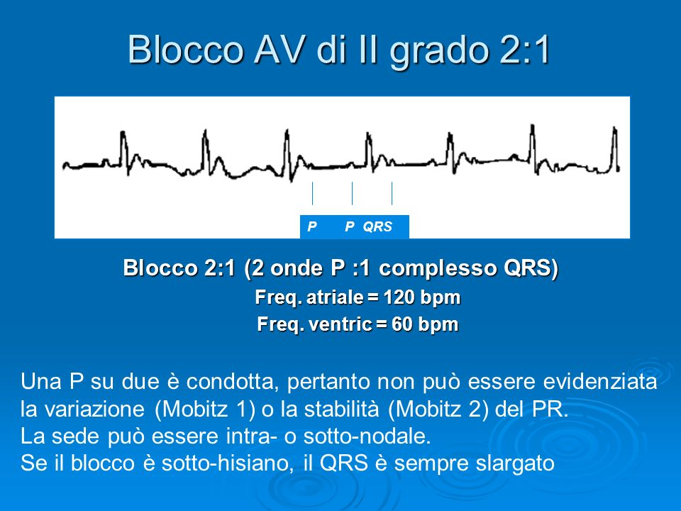 Blocco 2:1 (2 onde P :1 complesso QRS)