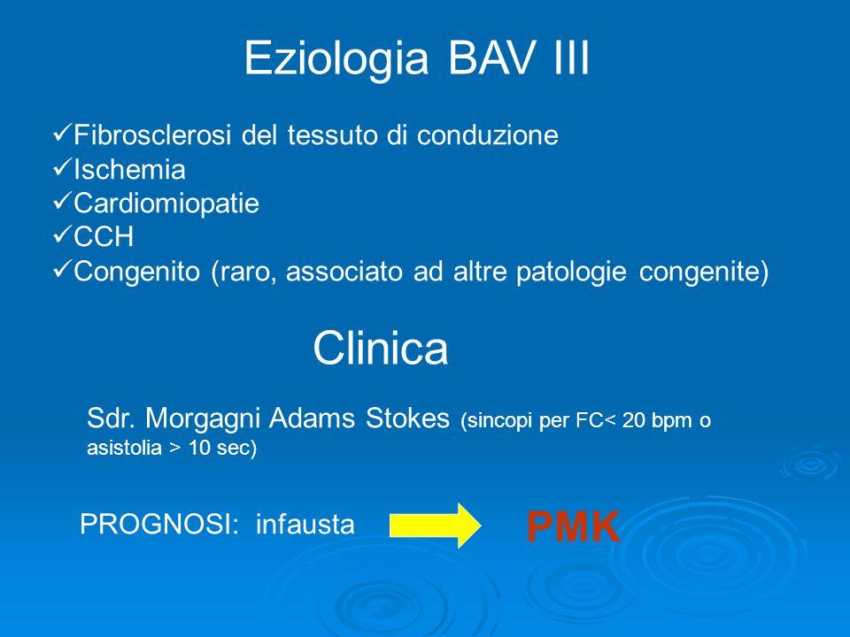 Eziologia BAV III Clinica PMK Fibrosclerosi del tessuto di conduzione