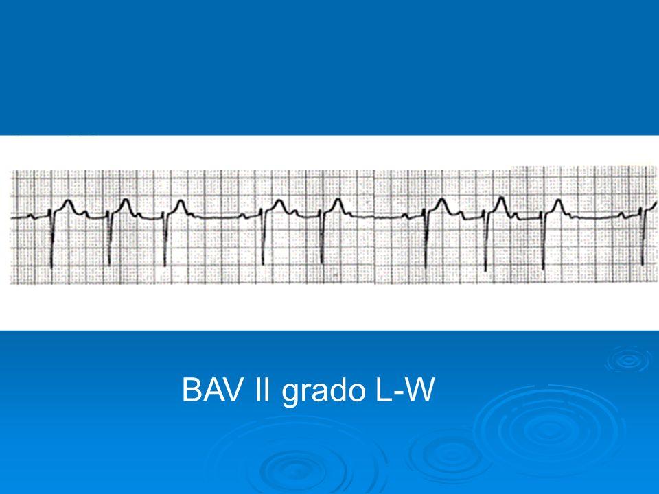 BAV II GRADO LUCIANI-WENCKEBACH