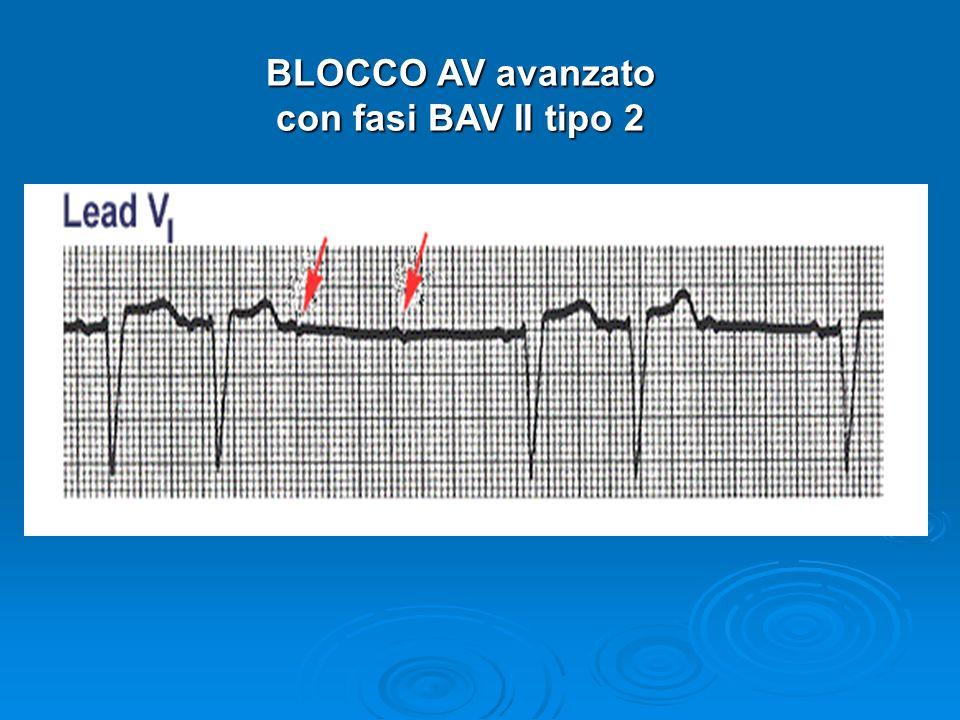 BLOCCO AV avanzato con fasi BAV II tipo 2
