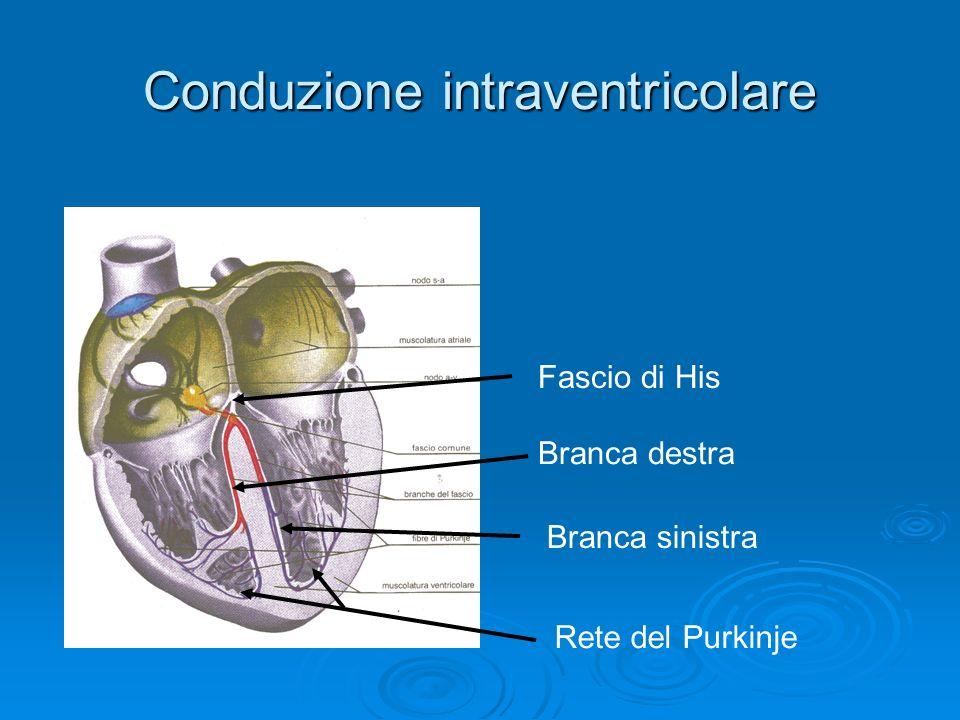 Conduzione intraventricolare