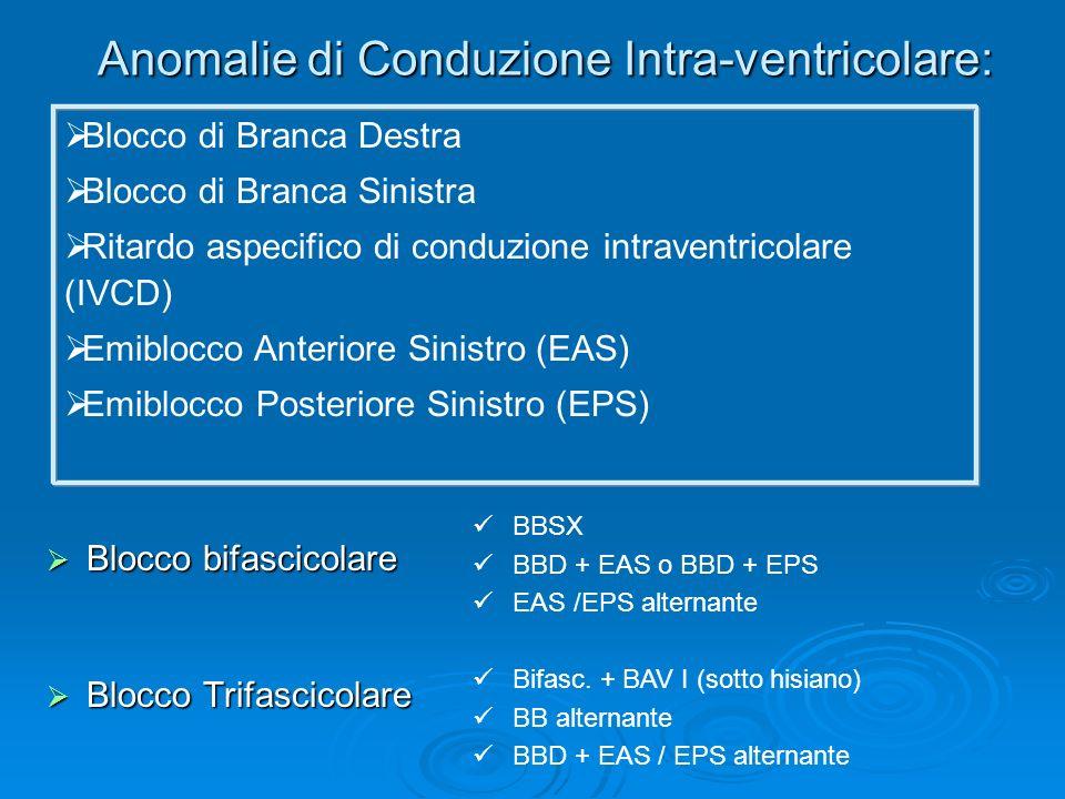 Anomalie di Conduzione Intra-ventricolare: