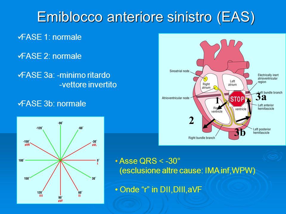 Emiblocco anteriore sinistro (EAS)