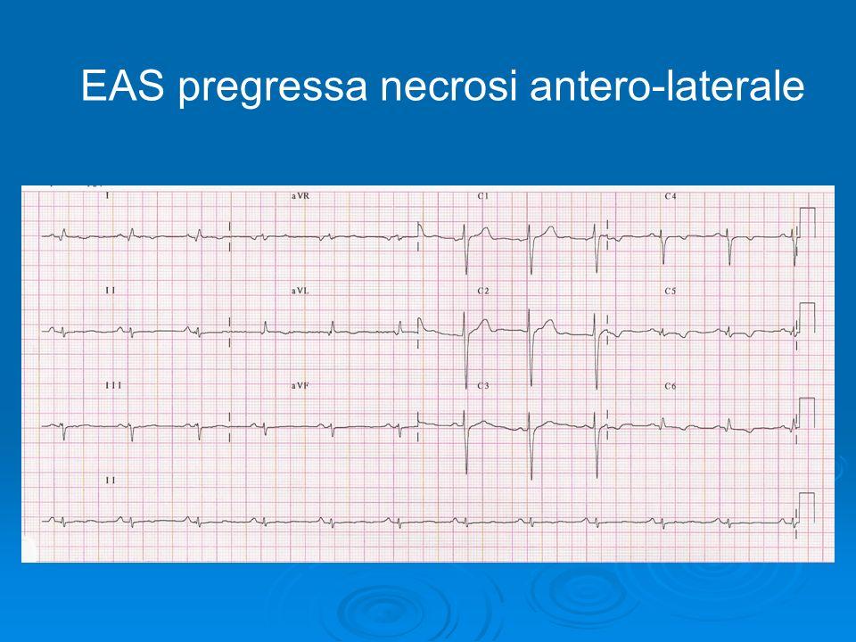 EAS pregressa necrosi antero-laterale