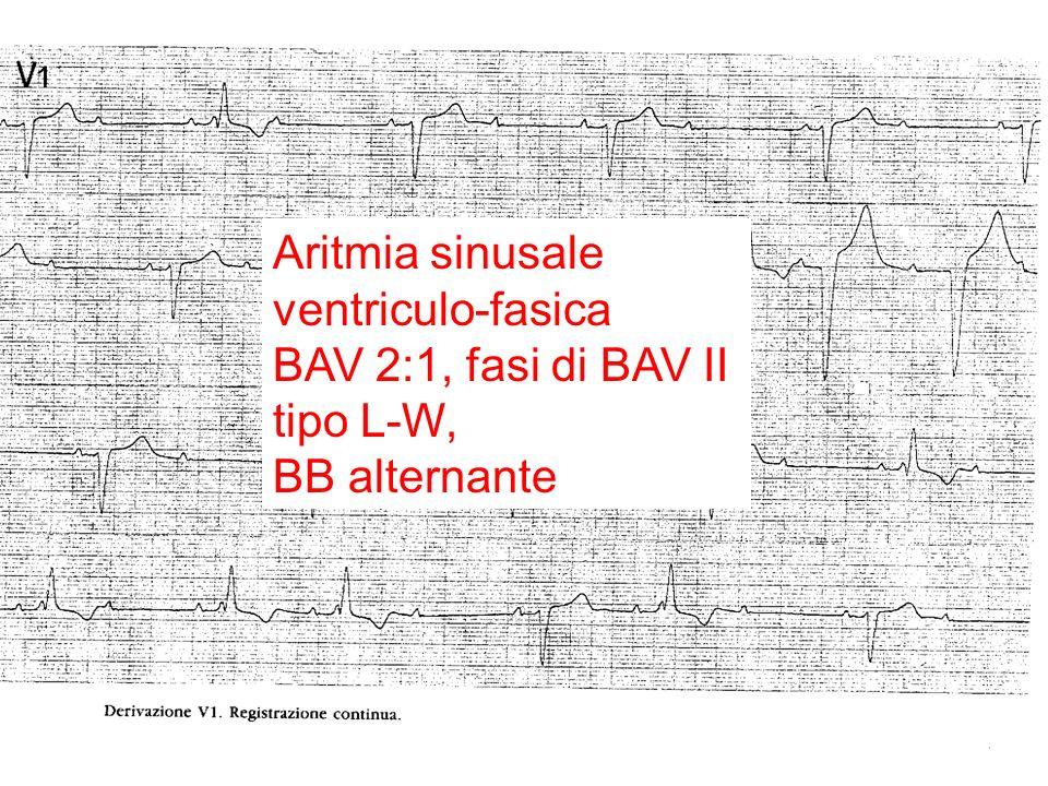 Aritmia sinusale ventriculo-fasica