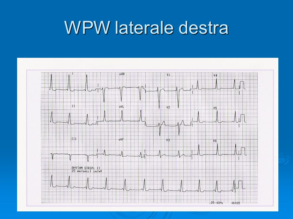 WPW laterale destra
