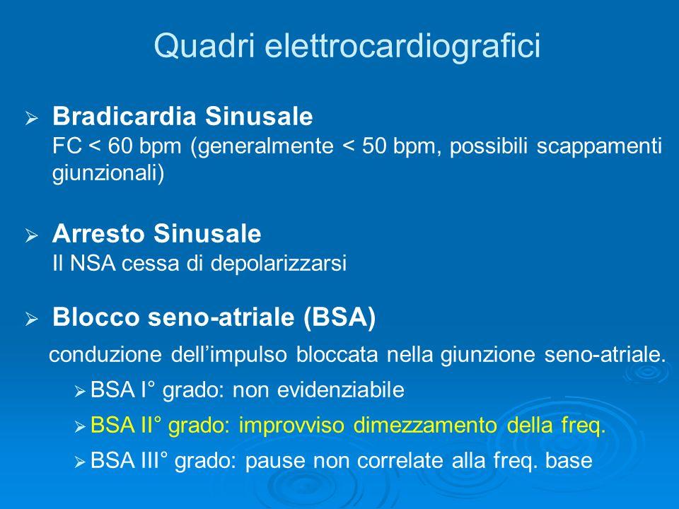 Quadri elettrocardiografici