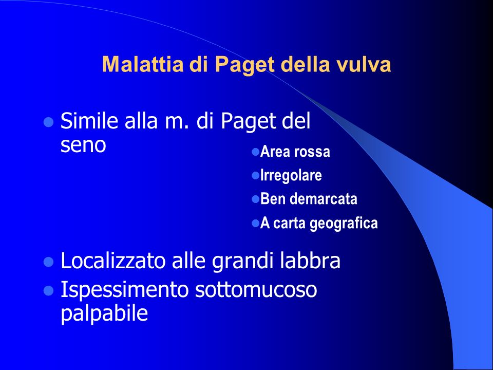 Malattia di Paget della vulva