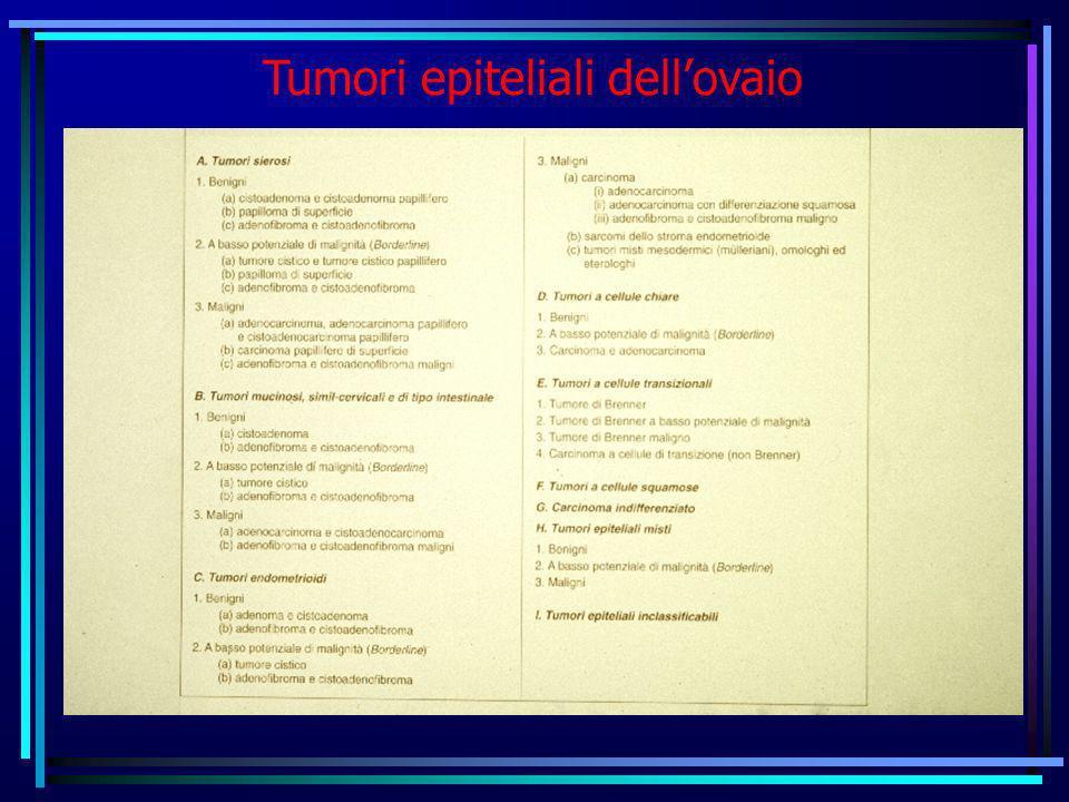 Tumori epiteliali dell'ovaio