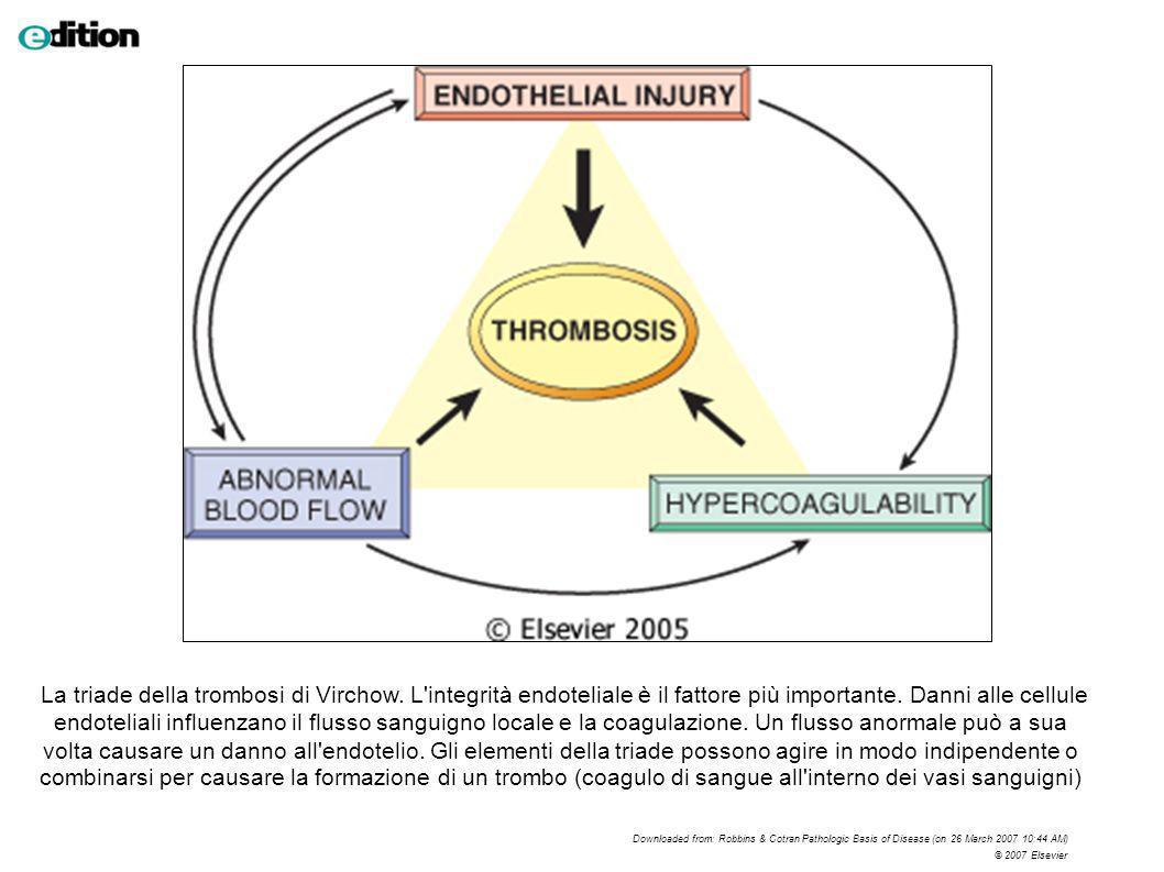 La triade della trombosi di Virchow