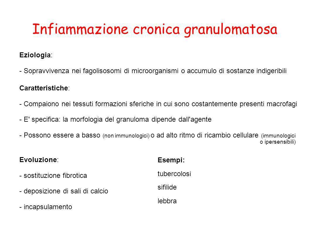Infiammazione cronica granulomatosa