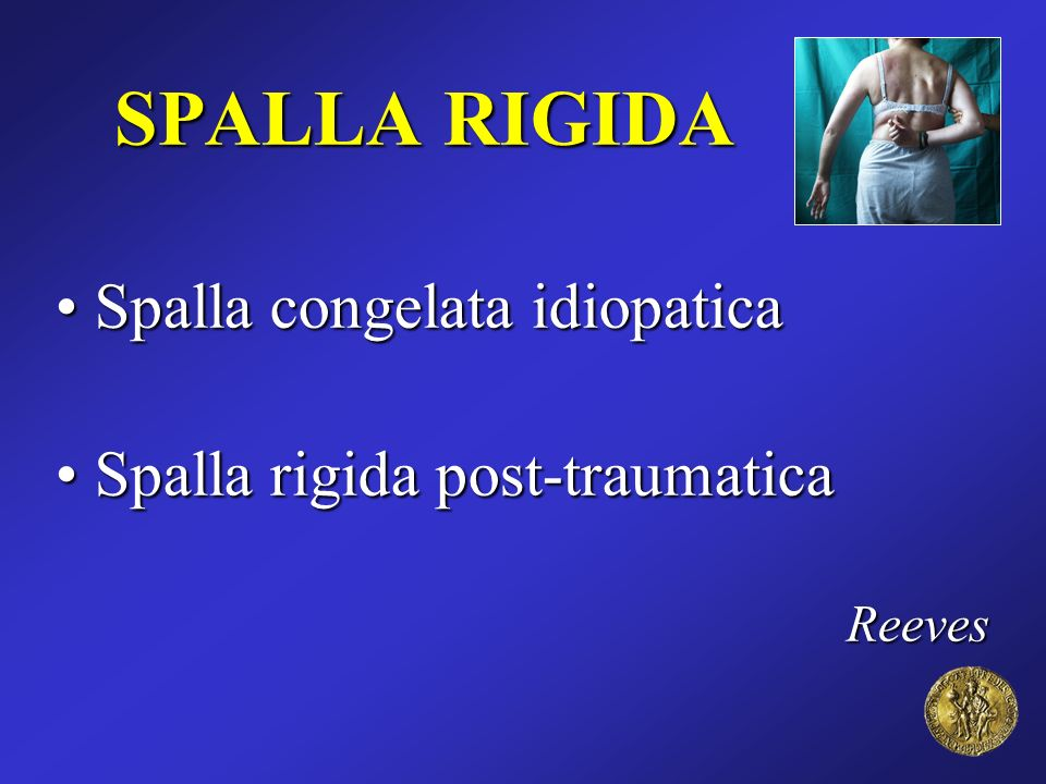 SPALLA RIGIDA Spalla congelata idiopatica