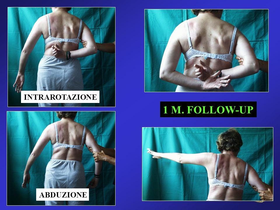 INTRAROTAZIONE 1 M. FOLLOW-UP ABDUZIONE