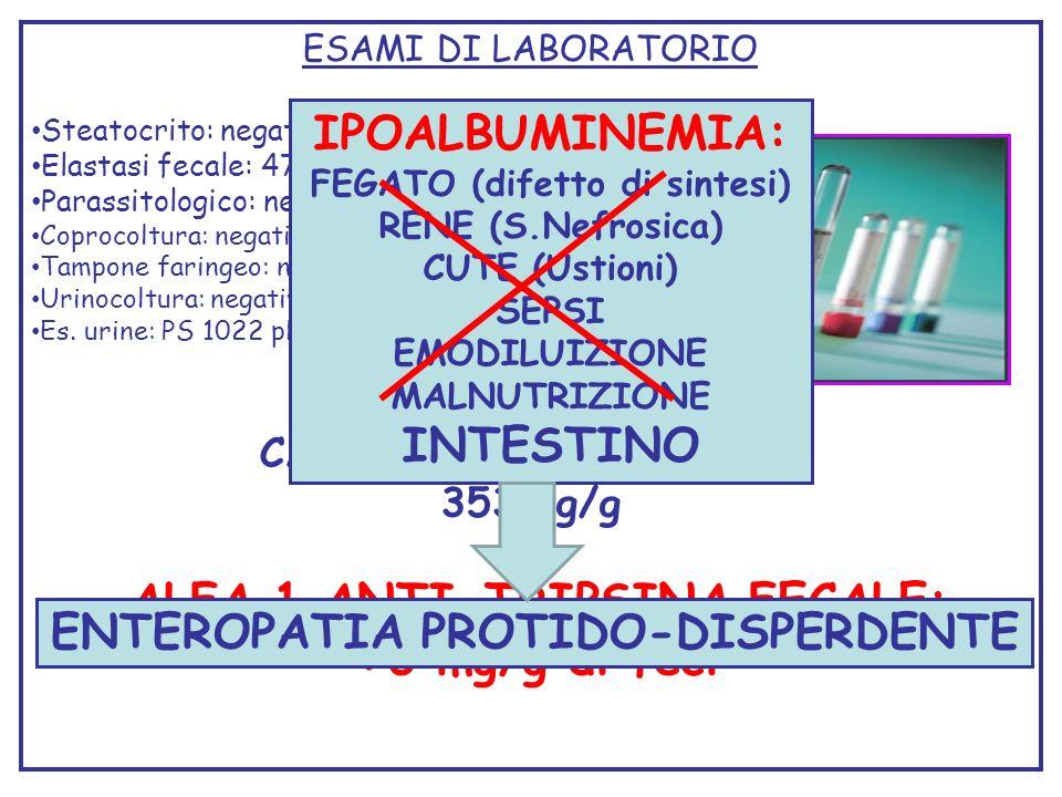 ALFA 1 ANTI-TRIPSINA FECALE: >3 mg/g di feci