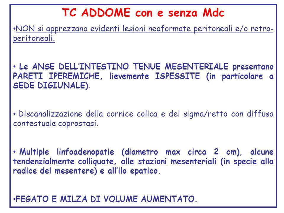 TC ADDOME con e senza Mdc