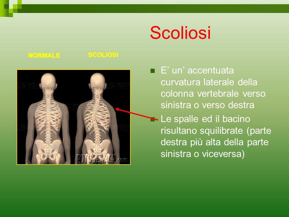 Scoliosi NORMALE. NORMALE. NORMALE. SCOLIOSI. SCOLIOSI. SCOLIOSI.