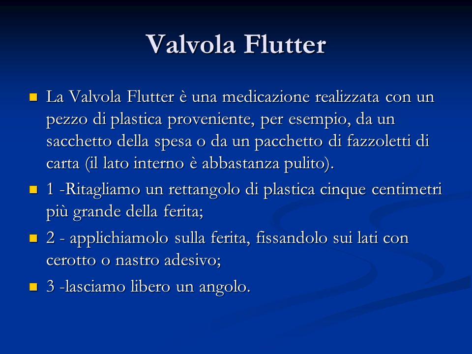 Valvola Flutter
