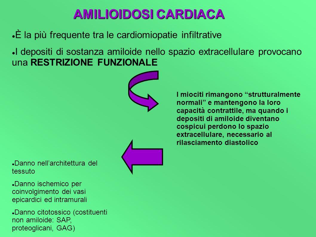 AMILIOIDOSI CARDIACA È la più frequente tra le cardiomiopatie infiltrative.