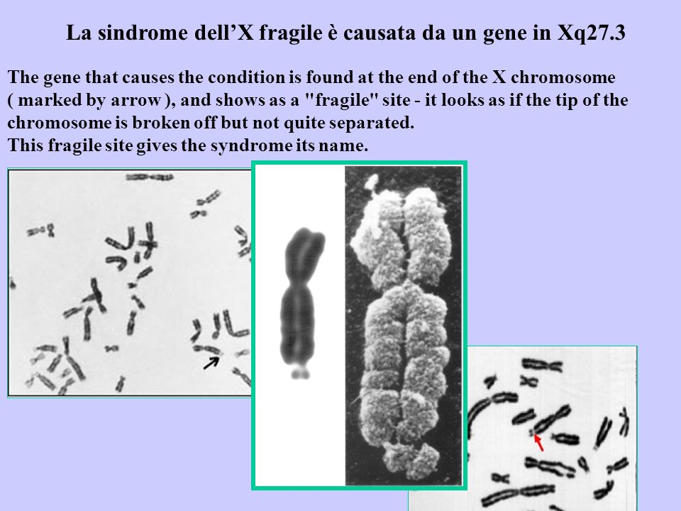 La sindrome dell'X fragile è causata da un gene in Xq27.3