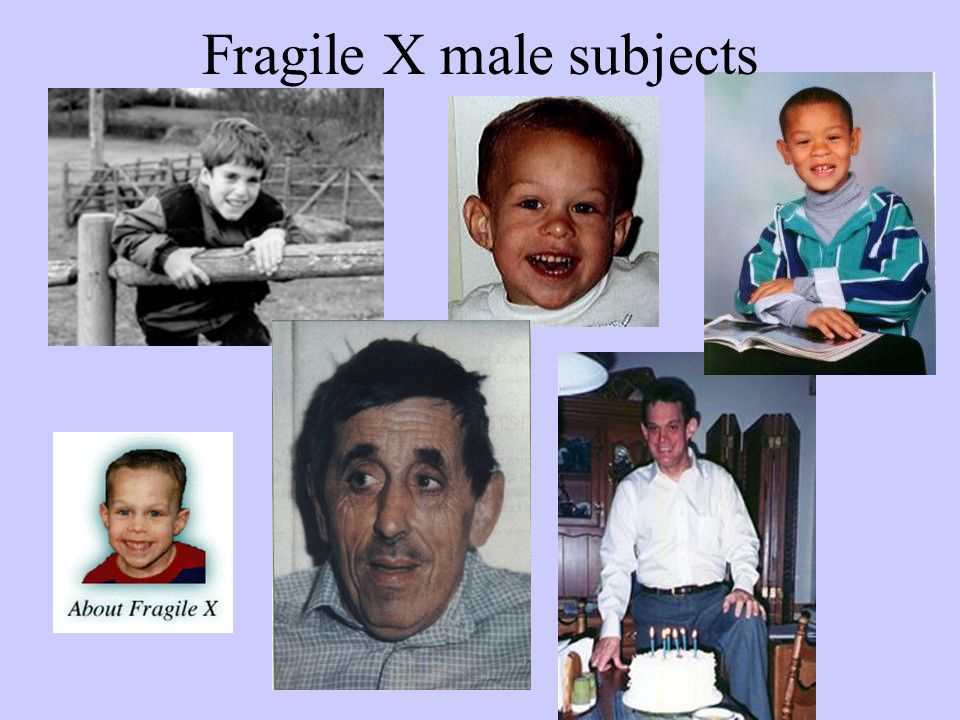 Fragile X male subjects