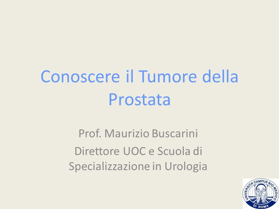 Conoscere il Tumore della Prostata