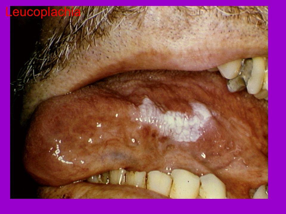Leucoplachia