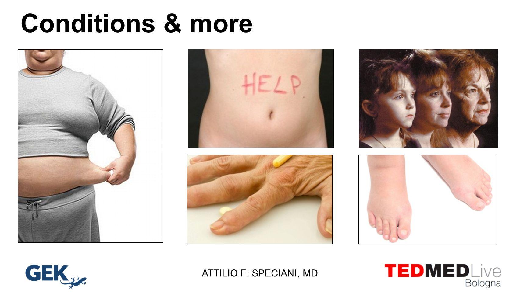 Conditions & more arttrite diabete, obesità, resistenza insulinica