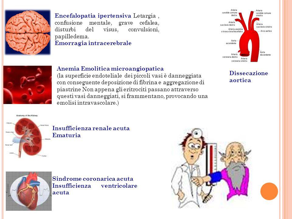 Encefalopatia ipertensiva Letargia , confusione mentale, grave cefalea, disturbi del visus, convulsioni, papilledema.
