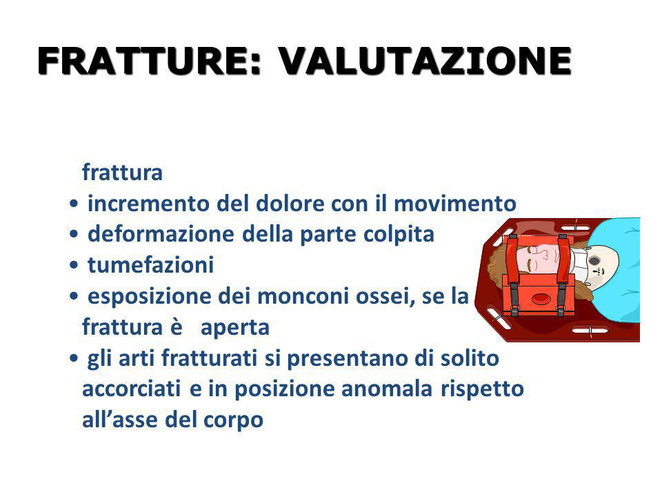 FRATTURE: VALUTAZIONE