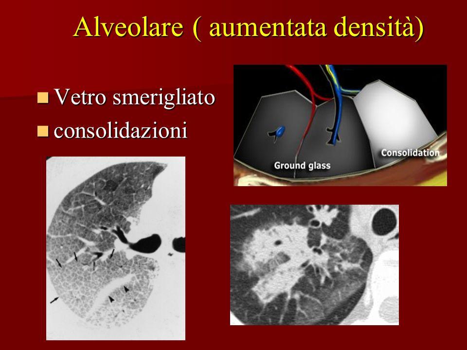 Alveolare ( aumentata densità)