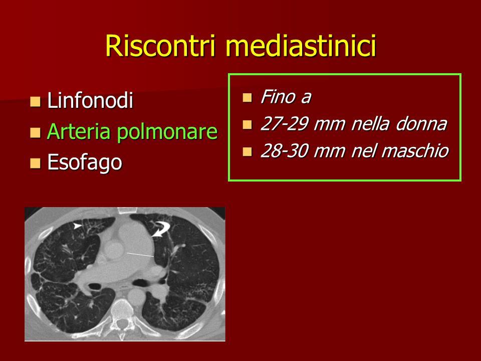 Riscontri mediastinici