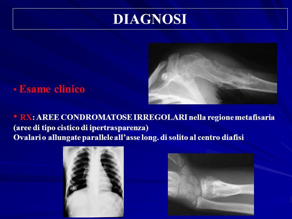 DIAGNOSIEsame clinico. RX: AREE CONDROMATOSE IRREGOLARI nella regione metafisaria (aree di tipo cistico di ipertrasparenza)