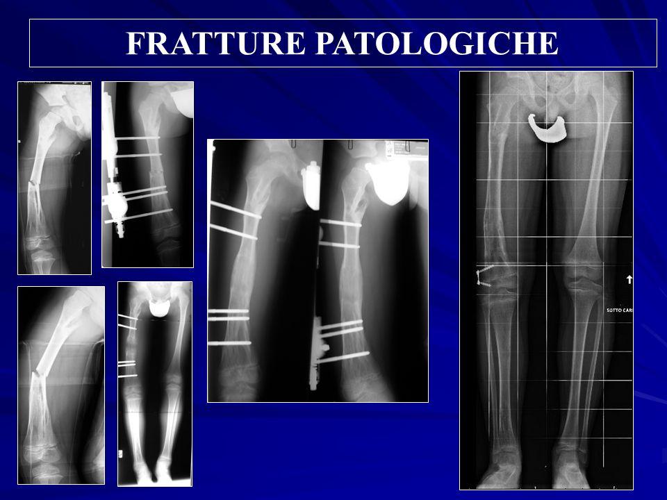 FRATTURE PATOLOGICHE