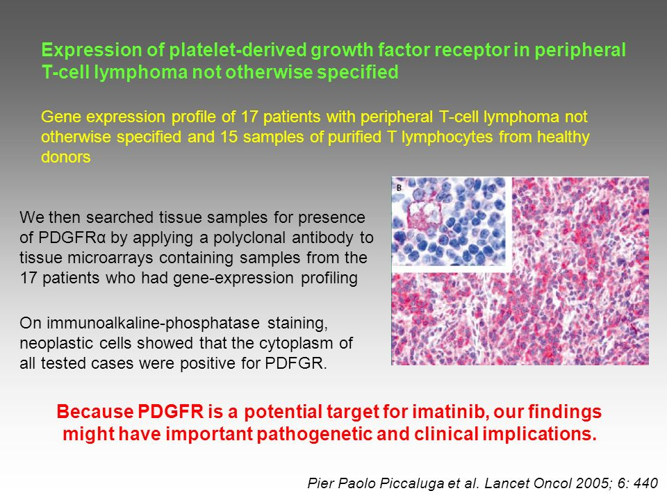 Expression of platelet-derived growth factor receptor in peripheral T-cell lymphoma not otherwise specified