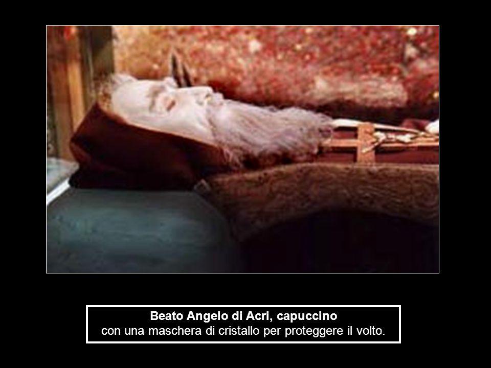 Beato Angelo di Acri, capuccino con una maschera di cristallo per proteggere il volto.