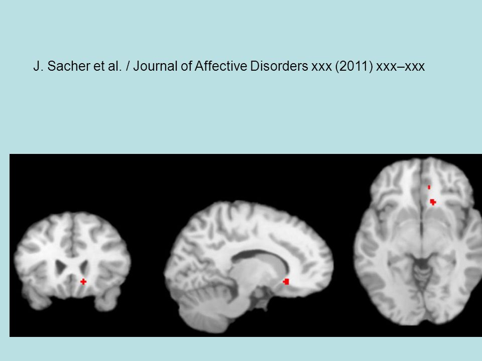 J. Sacher et al. / Journal of Affective Disorders xxx (2011) xxx–xxx