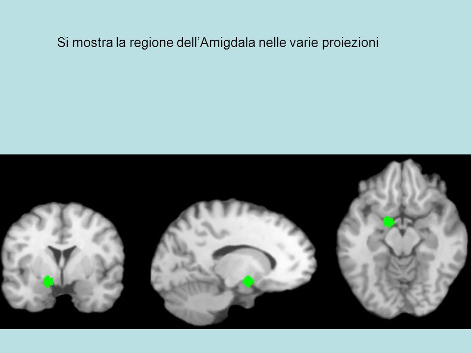 Si mostra la regione dell'Amigdala nelle varie proiezioni