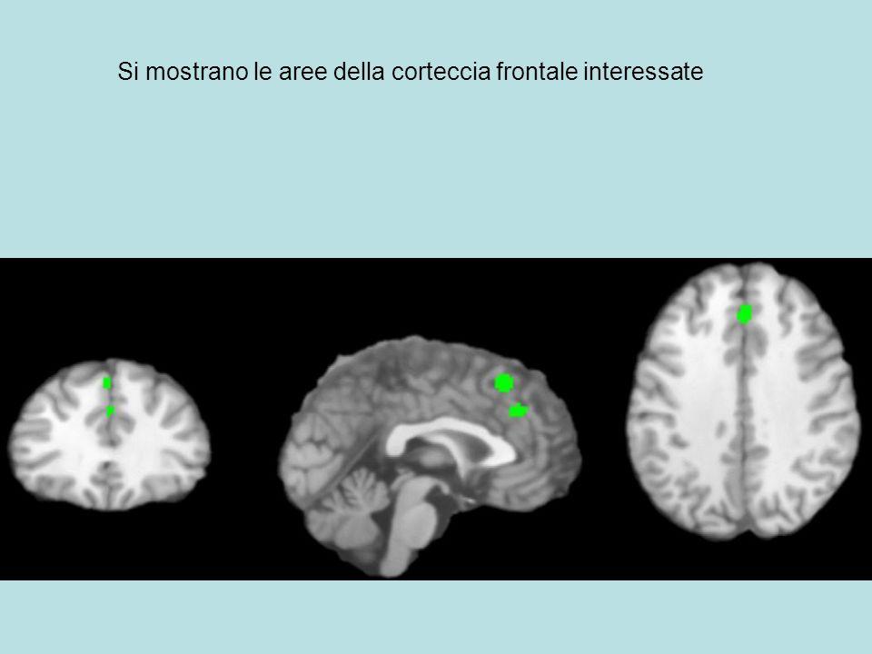 Si mostrano le aree della corteccia frontale interessate