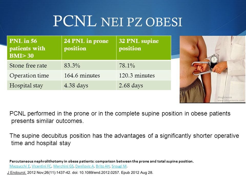 PCNL NEI PZ OBESI PNL in 56 patients with BMI> 30